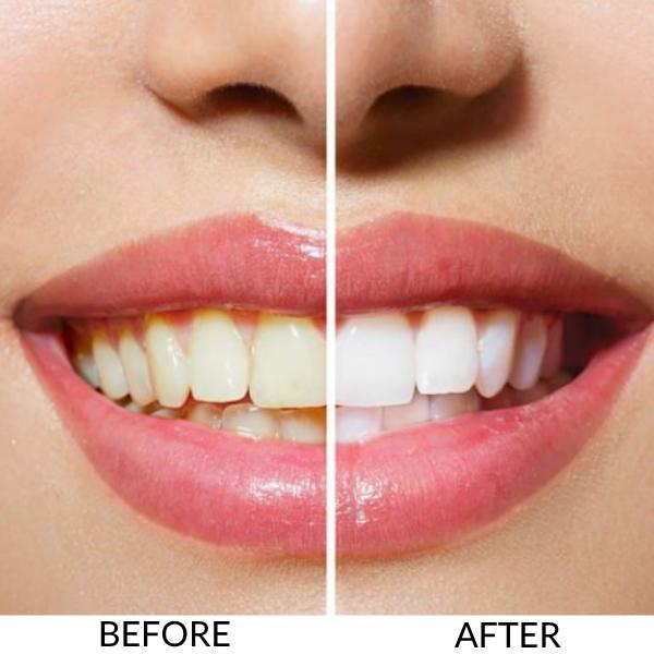 Heather Dyck Beauty Teeth Whitening 1