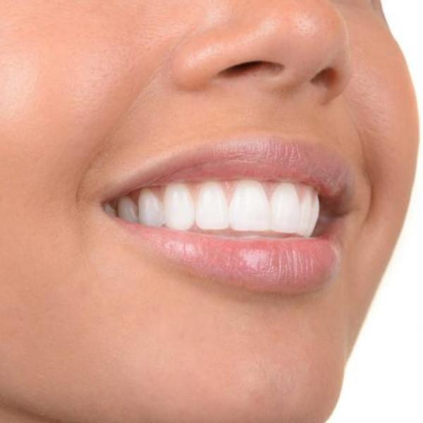 Heather Dyck Beauty Teeth Whitening 2