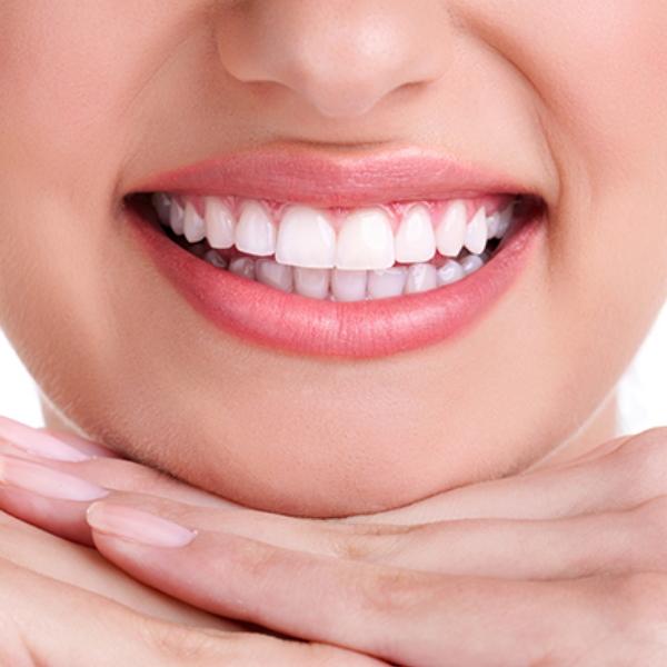 Heather Dyck Beauty Teeth Whitening 3