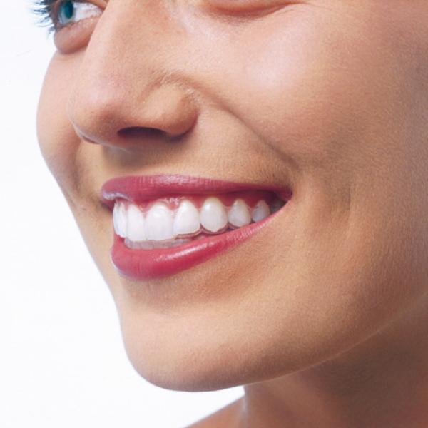 Heather Dyck Beauty Teeth Whitening 4