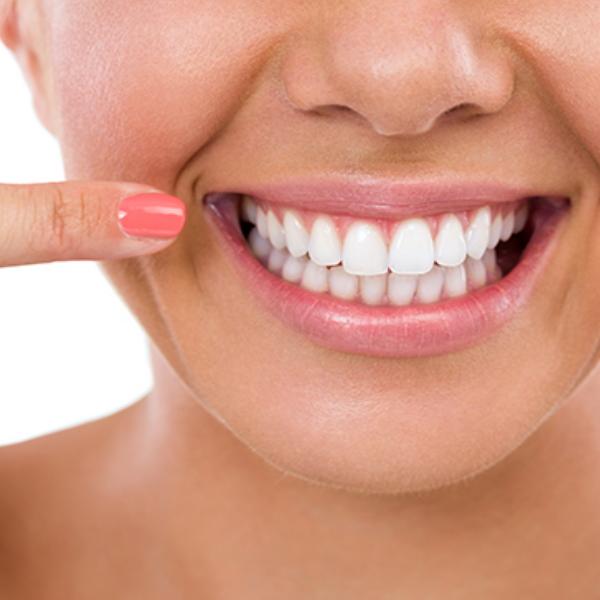 Heather Dyck Beauty Teeth Whitening 5